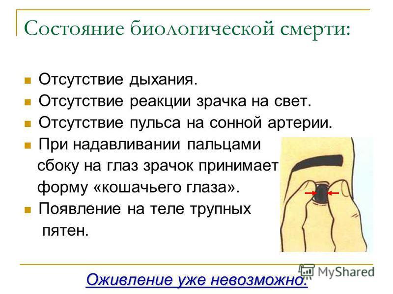 Состояние биологической смерти: Отсутствие дыхания. Отсутствие реакции зрачка на свет. Отсутствие пульса на сонной артерии. При надавливании пальцами сбоку на глаз зрачок принимает форму «кошачьего глаза». Появление на теле трупных пятен. Оживление у