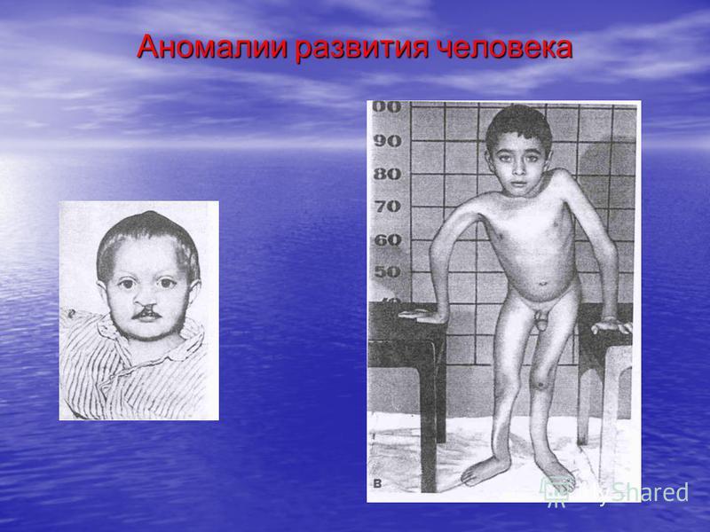 Аномалии развития человека