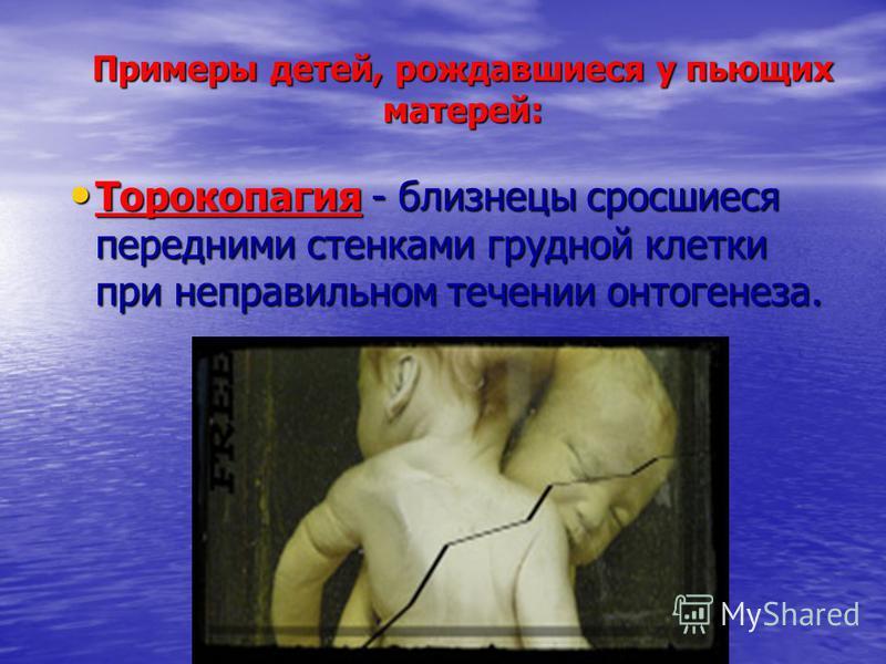 Примеры детей, рождавшиеся у пьющих матерей: Торокопагия - близнецы сросшиеся передними стенками грудной клетки при неправильном течении онтогенеза. Торокопагия - близнецы сросшиеся передними стенками грудной клетки при неправильном течении онтогенез
