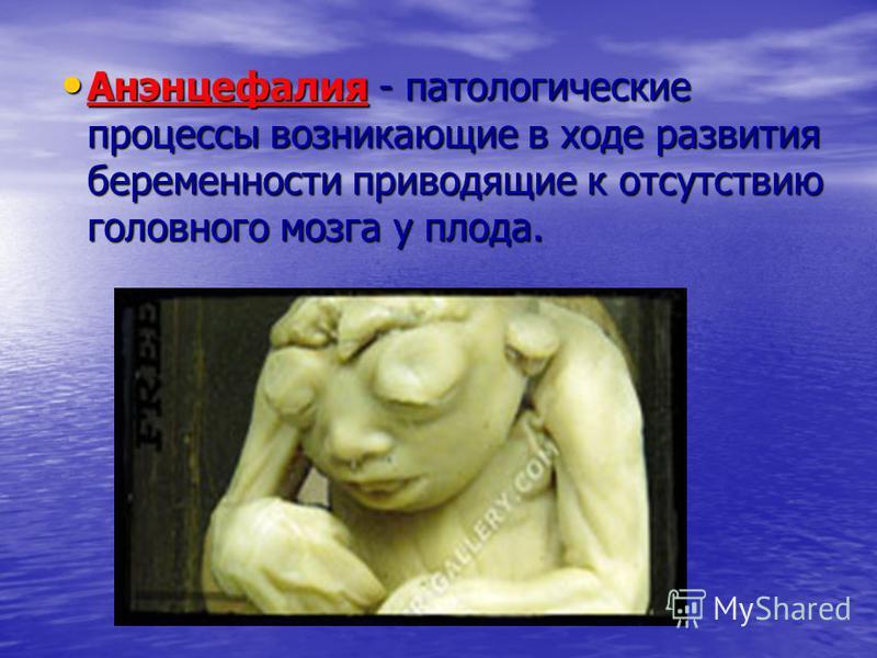 Анэнцефалия - патологические процессы возникающие в ходе развития беременности приводящие к отсутствию головного мозга у плода. Анэнцефалия - патологические процессы возникающие в ходе развития беременности приводящие к отсутствию головного мозга у п