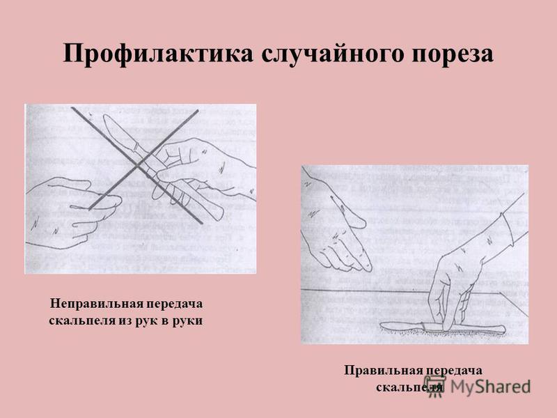 Профилактика случайного укола иглой Неправильное одевание Правильное надевание колпачка на иглу колпачка на иглу