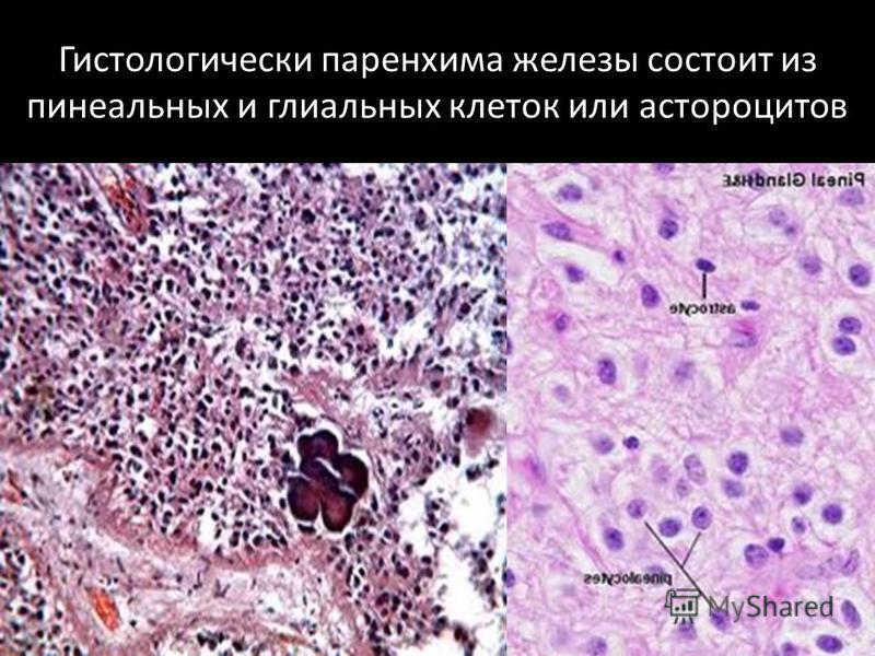 Гистологически паренхима железы состоит из пинеальных и глиальных клеток или астроцитов