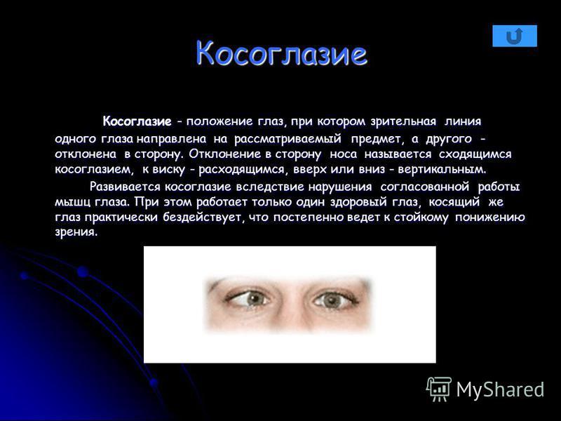 Косоглазие Косоглазие - положение глаз, при котором зрительная линия одного глаза направлена на рассматриваемый предмет, а другого - отклонена в сторону. Отклонение в сторону носа называется сходящимся косоглазием, к виску - расходящимся, вверх или в