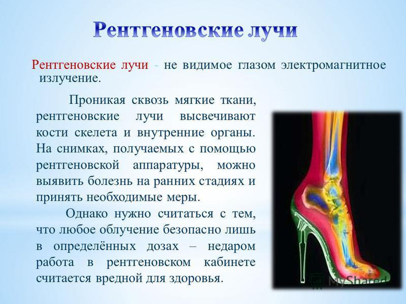Рентгеновские лучи - не видимое глазом электромагнитное излучение. Проникая сквозь мягкие ткани, рентгеновские лучи высвечивают кости скелета и внутренние органы. На снимках, получаемых с помощью рентгеновской аппаратуры, можно выявить болезнь на ран