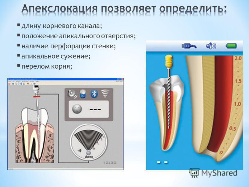 длину корневого канала; положение апикального отверстия; наличие перфорации стенки; апикальное сужение; перелом корня;
