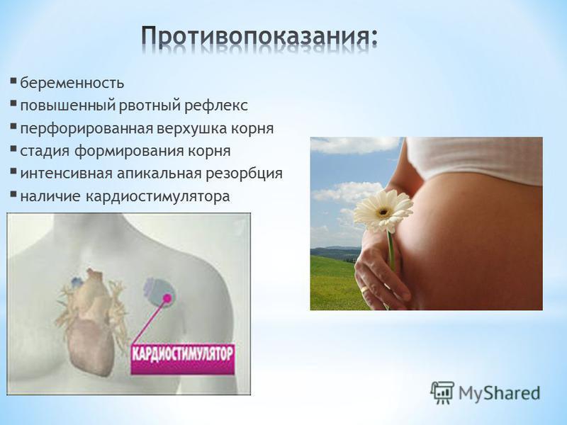 беременность повышенный рвотный рефлекс перфорированная верхушка корня стадия формирования корня интенсивная апикальная резорбция наличие кардиостимулятора