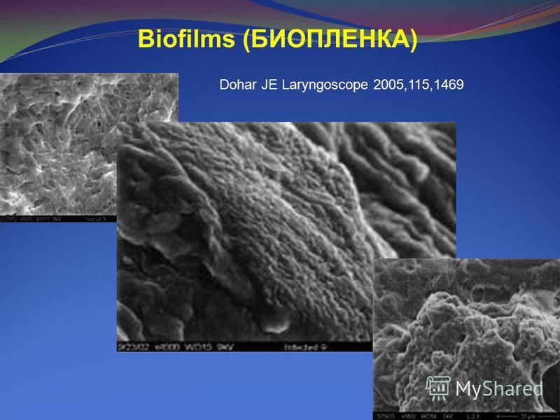 Biofilms (БИОПЛЕНКА) Dohar JE Laryngoscope 2005,115,1469