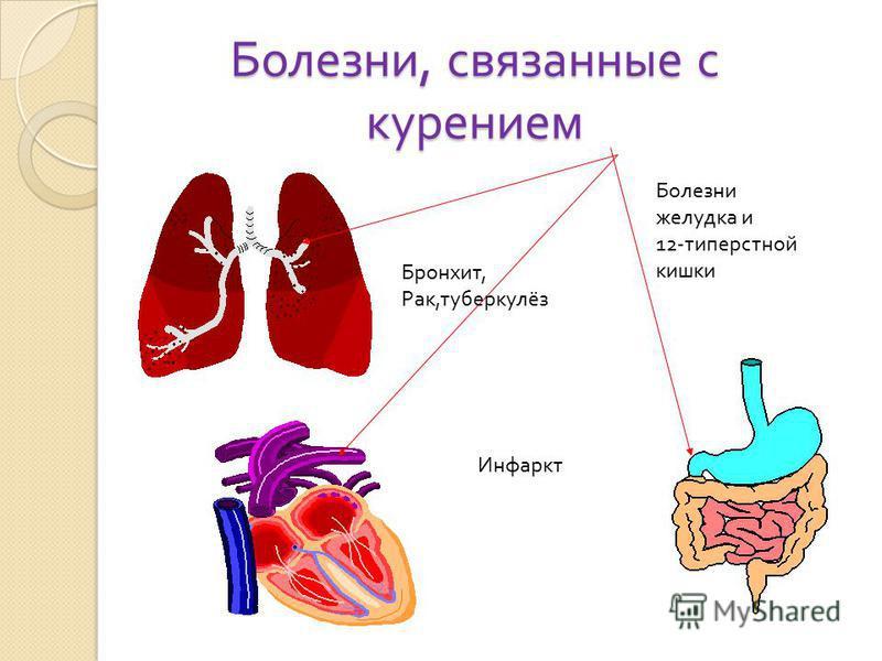 Болезни, связанные с курением Бронхит, Рак, туберкулёз Инфаркт Болезни желудка и 12- типерстной кишки