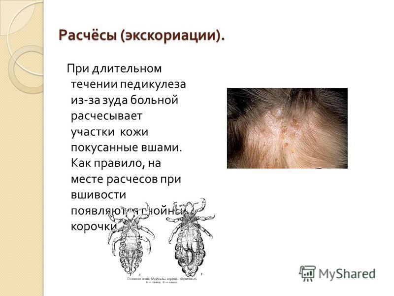 Расчёсы ( экскориации ). При длительном течении педикулеза из - за зуда больной расчесывает участки кожи покусанные вшами. Как правило, на месте расчесов при вшивости появляются гнойные корочки.
