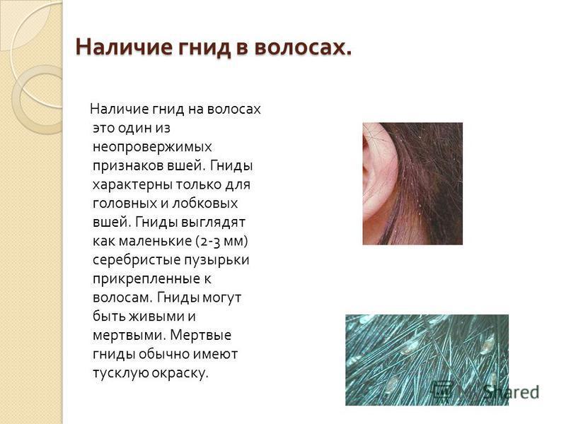 Наличие гнид в волосах. Наличие гнид в волосах. Наличие гнид на волосах это один из неопровержимых признаков вшей. Гниды характерны только для головных и лобковых вшей. Гниды выглядят как маленькие (2-3 мм ) серебристые пузырьки прикрепленные к волос