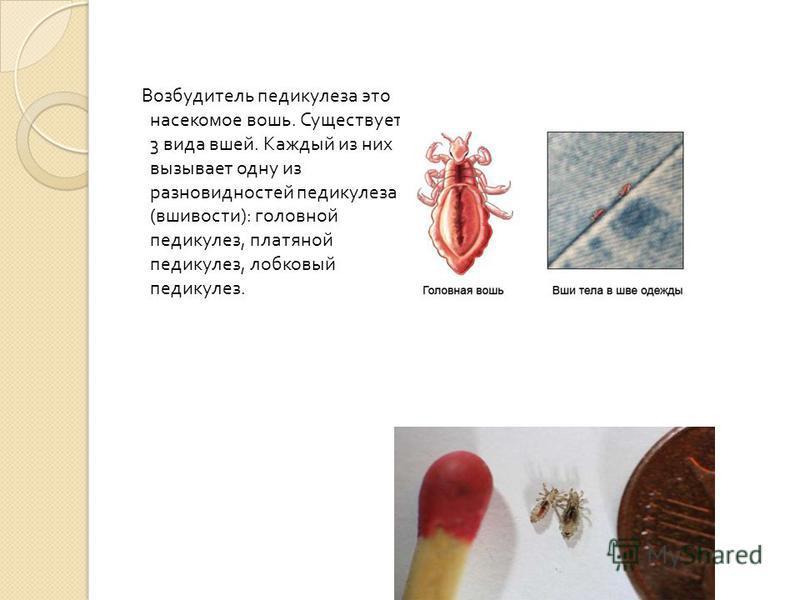 Возбудитель педикулеза это насекомое вошь. Существует 3 вида вшей. Каждый из них вызывает одну из разновидностей педикулеза ( вшивости ): головной педикулез, платяной педикулез, лобковый педикулез.