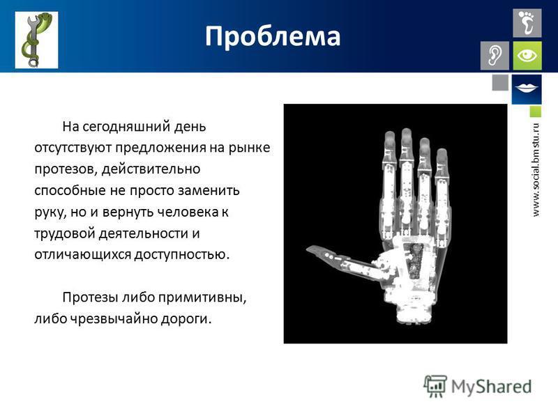 www.social.bmstu.ru Проблема На сегодняшний день отсутствуют предложения на рынке протезов, действительно способные не просто заменить руку, но и вернуть человека к трудовой деятельности и отличающихся доступностью. Протезы либо примитивны, либо чрез