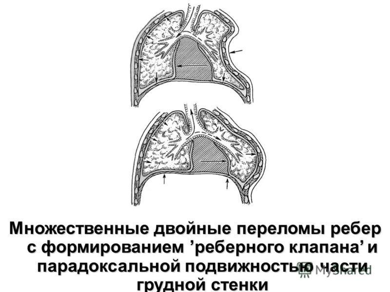 Множественные двойные переломы ребер с формированием реберного клапана и парадоксальной подвижностью части грудной стенки