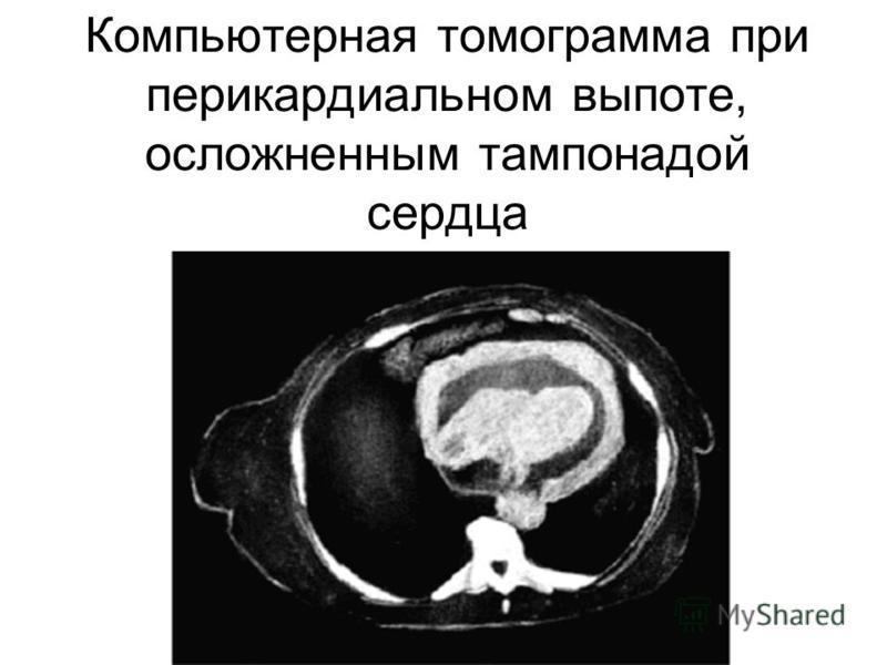 Компьютерная томограмма при перикардиальном выпоте, осложненным тампонадой сердца