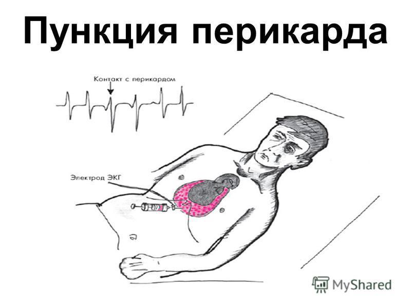 Пункция перикарда