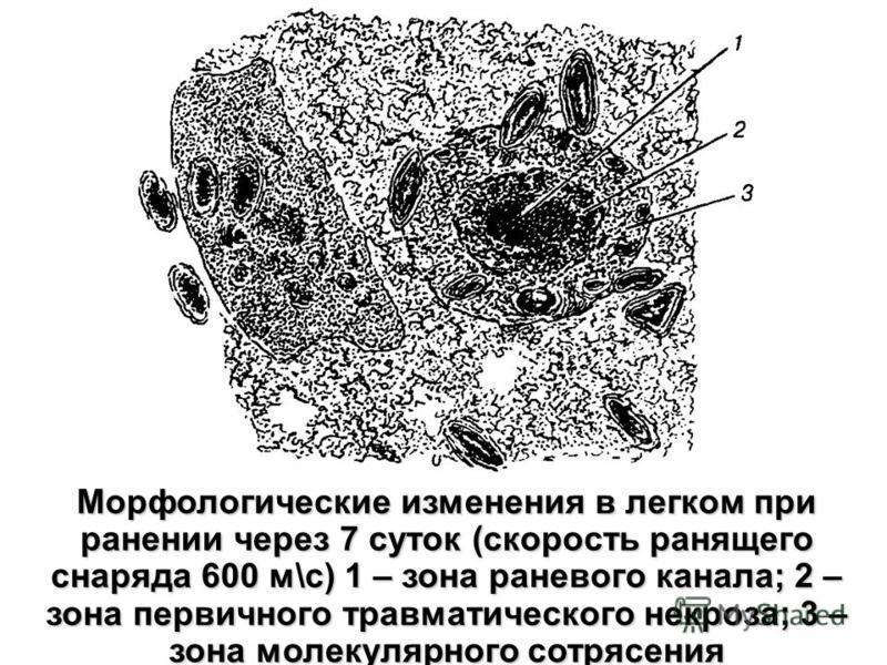 Морфологические изменения в легком при ранении через 7 суток (скорость ранящего снаряда 600 м\с) 1 – зона раневого канала; 2 – зона первичного травматического некроза; 3 – зона молекулярного сотрясения