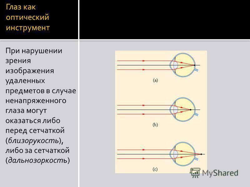 Глаз как оптический инструмент При нарушении зрения изображения удаленных предметов в случае ненапряженного глаза могут оказаться либо перед сетчаткой (близорукость), либо за сетчаткой (дальнозоркость)