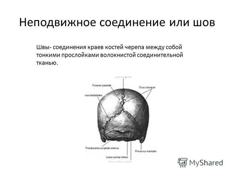 Неподвижное соединение или шов Швы- соединения краев костей черепа между собой тонкими прослойками волокнистой соединительной тканью.