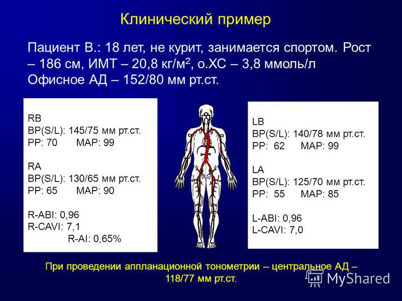 Клинический пример RB BP(S/L): 145/75 мм рт.ст. PP: 70 MAP: 99 RA BP(S/L): 130/65 мм рт.ст. PP: 65 MAP: 90 R-ABI: 0,96 R-CAVI: 7,1 R-AI: 0,65% LB BP(S/L): 140/78 мм рт.ст. PP: 62 MAP: 99 LA BP(S/L): 125/70 мм рт.ст. PP: 55 MAP: 85 L-ABI: 0,96 L-CAVI: