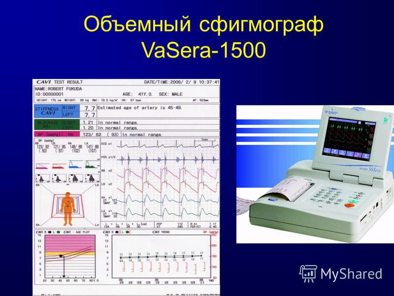 Объемный сфигмограф VaSera-1500