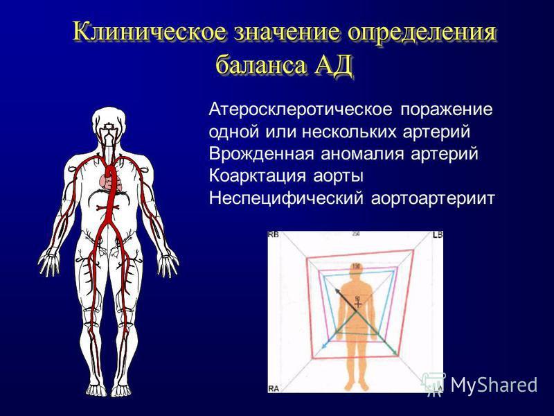 Клиническое значение определения баланса АД Атеросклеротическое поражение одной или нескольких артерий Врожденная аномалия артерий Коарктация аорты Неспецифический аортоартериит