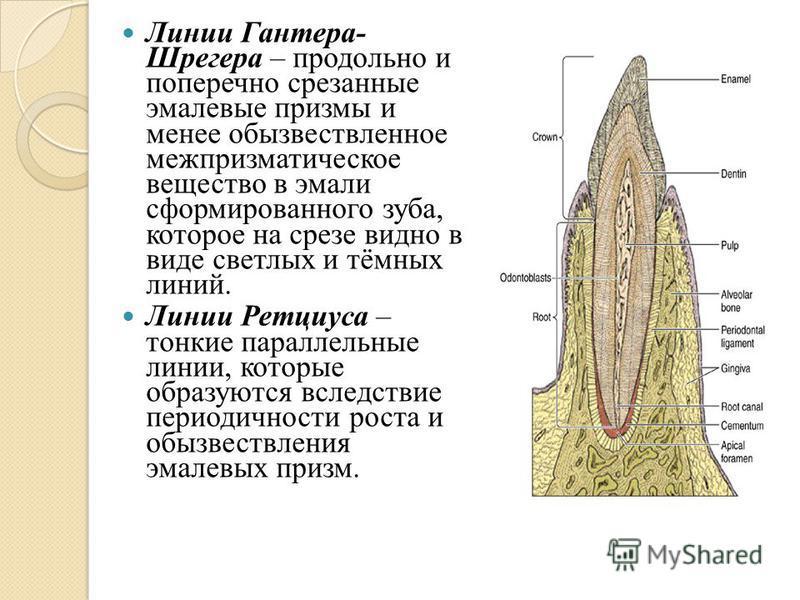 Линии Гантера- Шрегера – продольно и поперечно срезанные эмалевые призмы и менее обызвествленное меж призматическое вещество в эмали сформированного зуба, которое на срезе видно в виде светлых и тёмных линий. Линии Ретциуса – тонкие параллельные лини