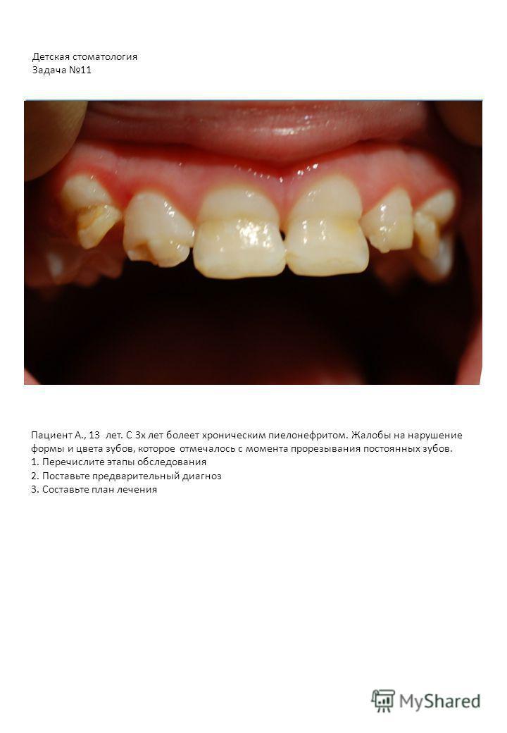 Пациент А., 13 лет. С 3 х лет болеет хроническим пиелонефритом. Жалобы на нарушение формы и цвета зубов, которое отмечалось с момента прорезывания постоянных зубов. 1. Перечислите этапы обследования 2. Поставьте предварительный диагноз 3. Составьте п