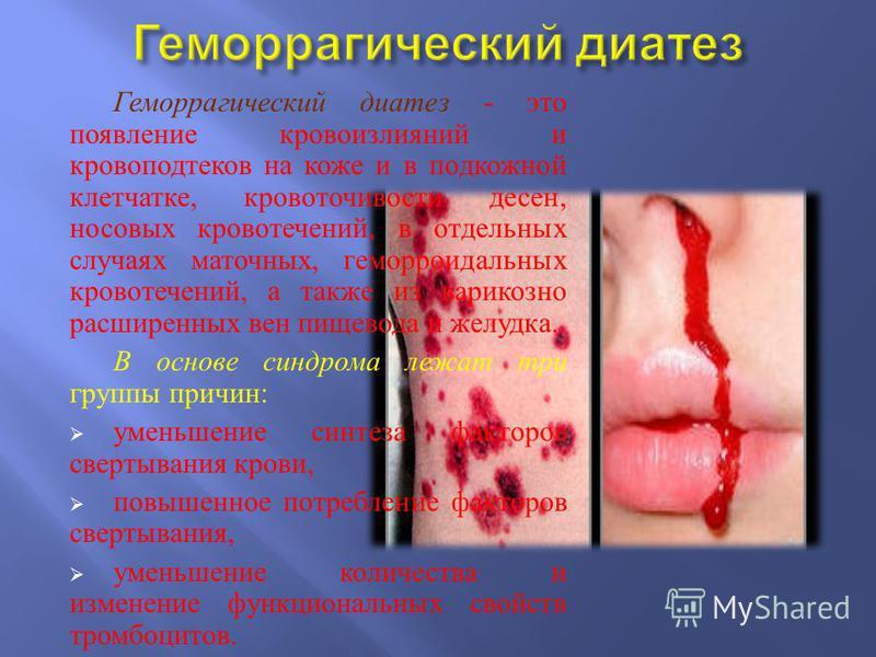Геморрагический диатез - это появление кровоизлияний и кровоподтеков на коже и в подкожной клетчатке, кровоточивости десен, носовых кровотечений, в отдельных случаях маточных, геморроидальных кровотечений, а также из варикозно расширенных вен пищевод