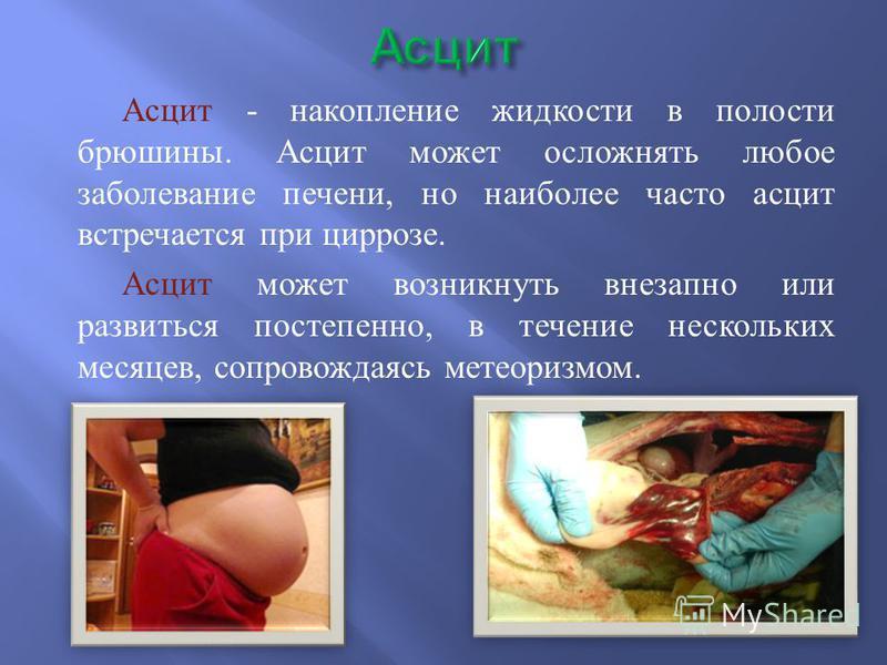 Асцит - накопление жидкости в полости брюшины. Асцит может осложнять любое заболевание печени, но наиболее часто асцит встречается при циррозе. Асцит может возникнуть внезапно или развиться постепенно, в течение нескольких месяцев, сопровождаясь мете