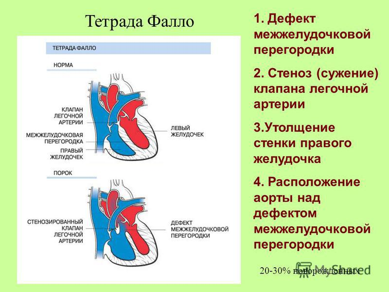 1. Дефект межжелудочковой перегородки 2. Стеноз (сужение) клапана легочной артерии 3. Утолщение стенки правого желудочка 4. Расположение аорты над дефектом межжелудочковой перегородки Тетрада Фалло 20-30% новорожденных