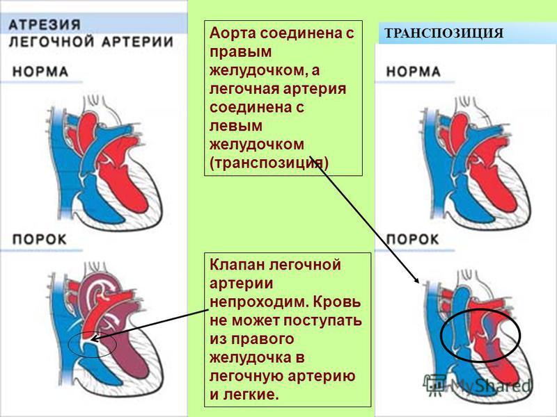 Клапан легочной артерии непроходим. Кровь не может поступать из правого желудочка в легочную артерию и легкие. Аорта соединена с правым желудочком, а легочная артерия соединена с левым желудочком (транспозиция) ТРАНСПОЗИЦИЯ