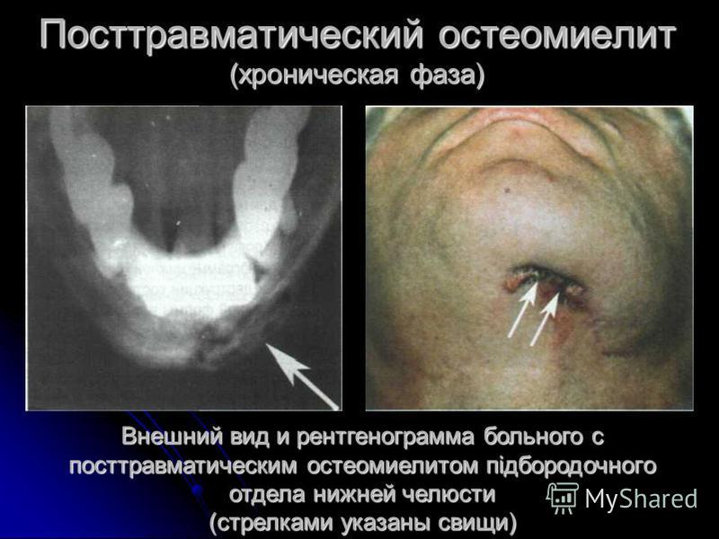 Посттравматический остеомиелит (хроническая фаза) Внешний вид и рентгенограмма больного с посттравматическим остеомиелитом підбородочного отдела нижней челюсти (стрелками указаны свищи)