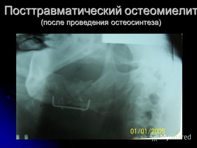 Посттравматический остеомиелит (после проведения остеосинтеза)