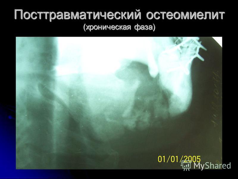 Посттравматический остеомиелит (хроническая фаза)