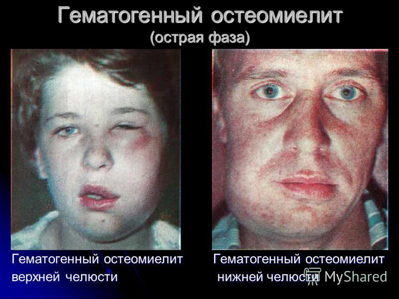 Гематогенный остеомиелит (острая фаза) Гематогенный остеомиелит Гематогенный остеомиелит Гематогенный остеомиелит Гематогенный остеомиелит верхней челюсти нижней челюсти верхней челюсти нижней челюсти