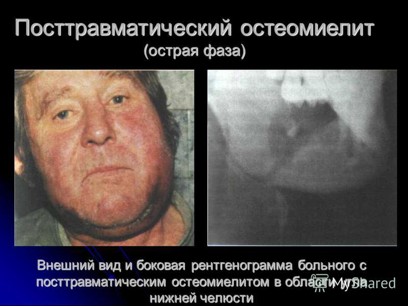 Внешний вид и боковая рентгенограмма больного с посттравматическим остеомиелитом в области угла нижней челюсти Посттравматический остеомиелит (острая фаза)