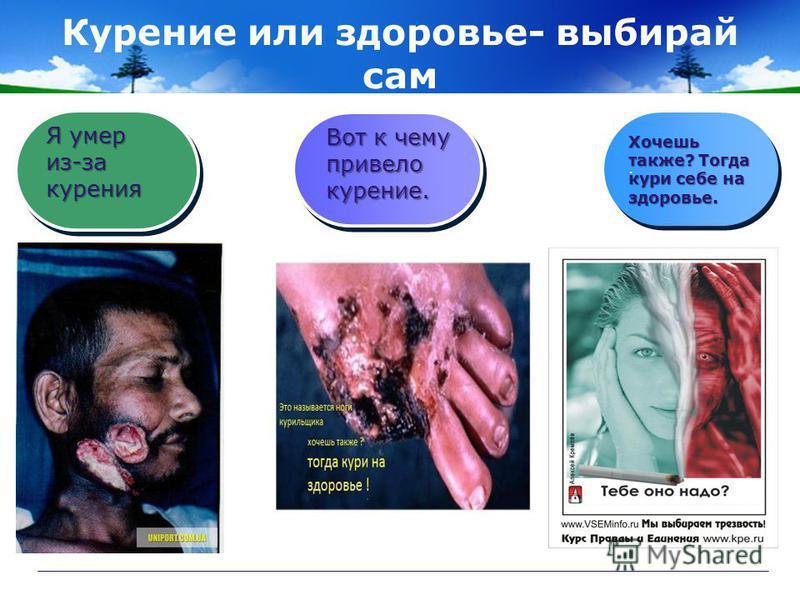 Курение или здоровье- выбирай сам.. Я умер из-за курения Вот к чему привело курение. Хочешь также? Тогда кури себе на здоровье.