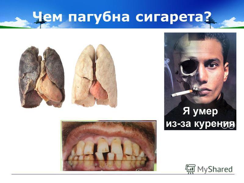 Чем пагубна сигарета?