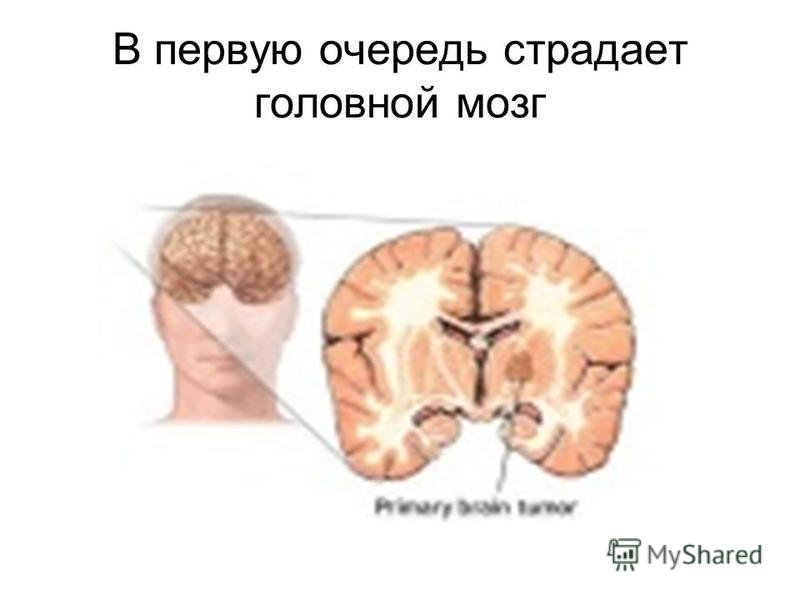 В первую очередь страдает головной мозг