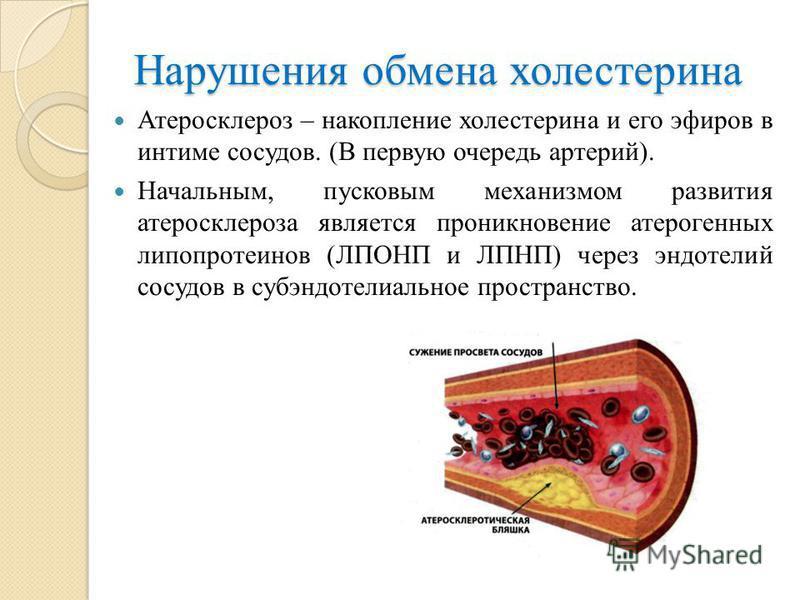 Нарушения обмена холестерина Атеросклероз – накопление холестерина и его эфиров в интиме сосудов. (В первую очередь артерий). Начальным, пусковым механизмом развития атеросклероза является проникновение атерогенных липопротеинов (ЛПОНП и ЛПНП) через