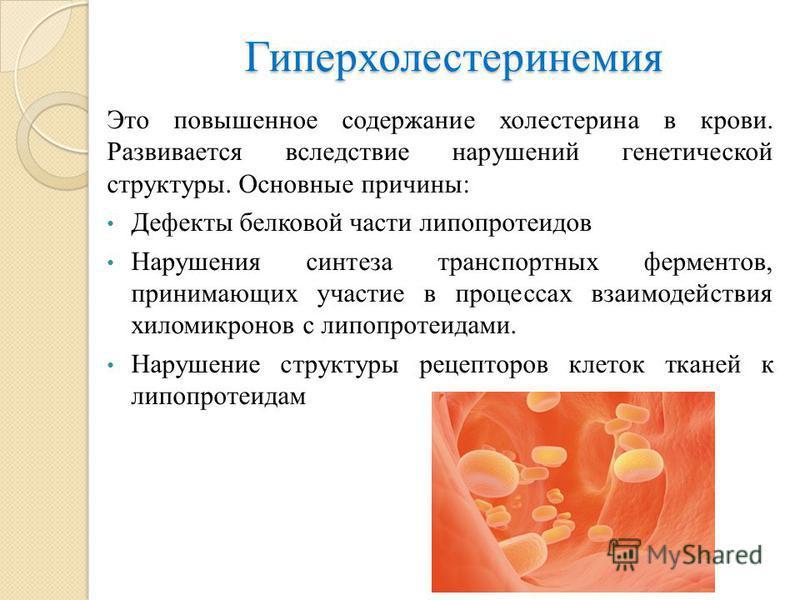 Нестенозирующий атеросклероз асб
