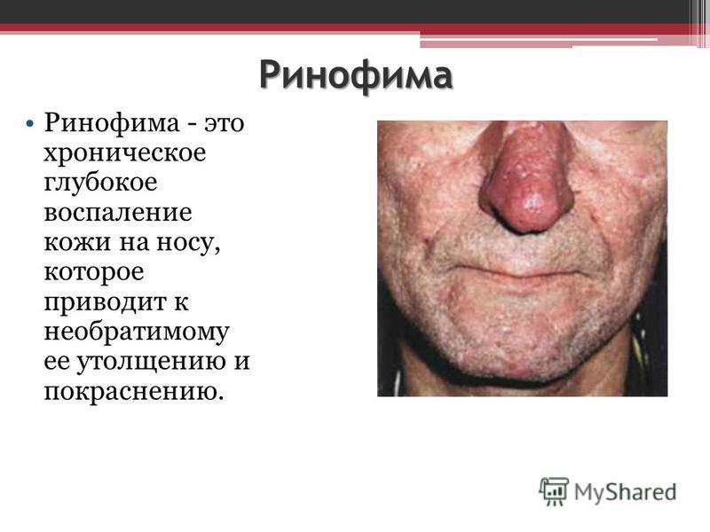 Ринофима Ринофима - это хроническое глубокое воспаление кожи на носу, которое приводит к необратимому ее утолщению и покраснению.