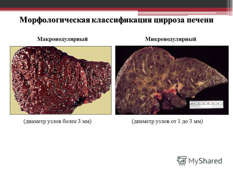 Морфологическая классификация цирроза печени Макронодулярный Микронодулярный (диаметр узлов от 1 до 3 мм)(диаметр узлов более 3 мм)