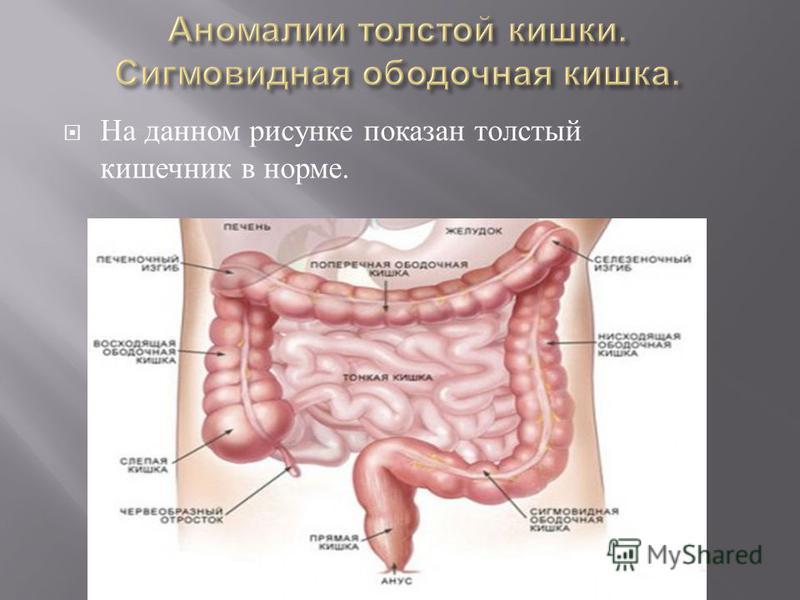 На данном рисунке показан толстый кишечник в норме.