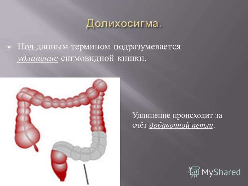 Под данным термином подразумевается удлинение сигмовидной кишки. Удлинение происходит за счёт добавочной петли.