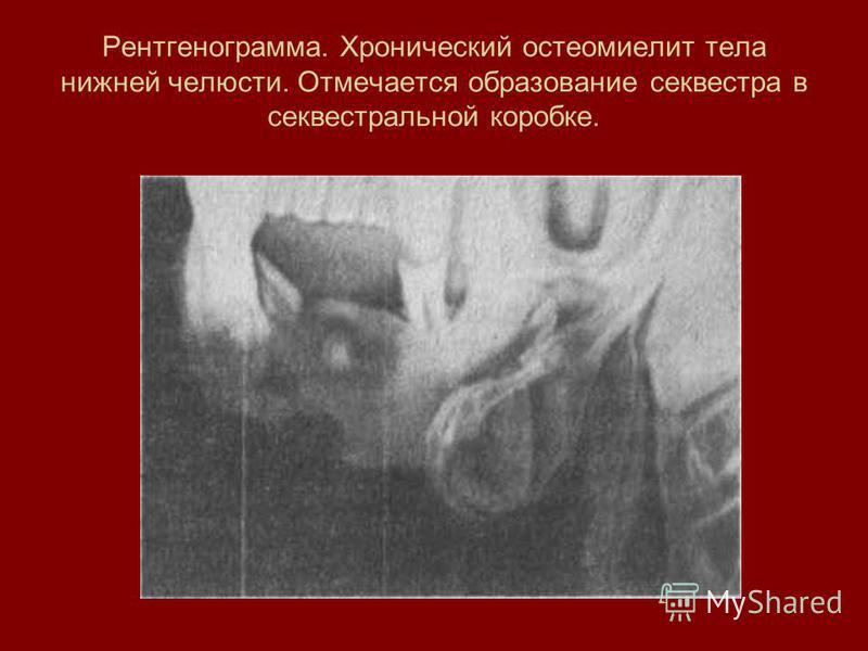 Рентгенограмма. Хронический остеомиелит тела нижней челюсти. Отмечается образование секвестра в секвестральной коробке.