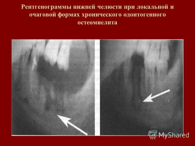 Рентгенограммы нижней челюсти при локальной и очаговой формах хронического одонтогенного остеомиелита