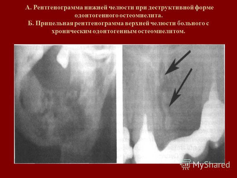 А. Рентгенограмма нижней челюсти при деструктивной форме одонтогенного остеомиелита. Б. Прицельная рентгенограмма верхней челюсти больного с хроническим одонтогенным остеомиелитом.