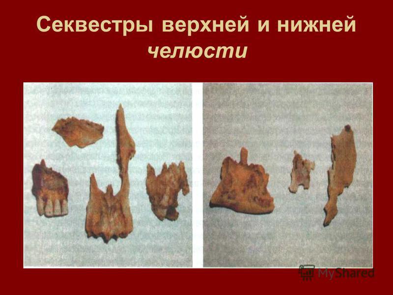 Секвестры верхней и нижней челюсти