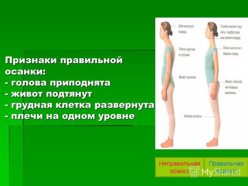 Признаки правильной осанки: - голова приподнята - живот подтянут - грудная клетка развернута - плечи на одном уровне Неправильная осанка Правильная осанка